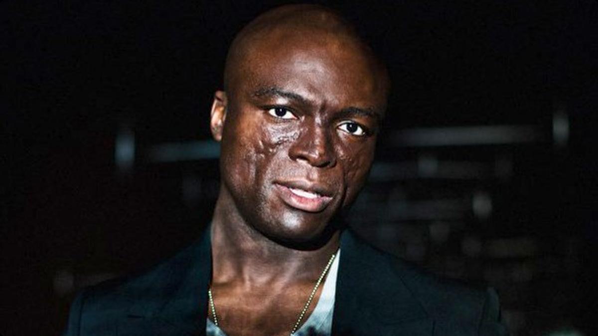 Singer seal facial scars